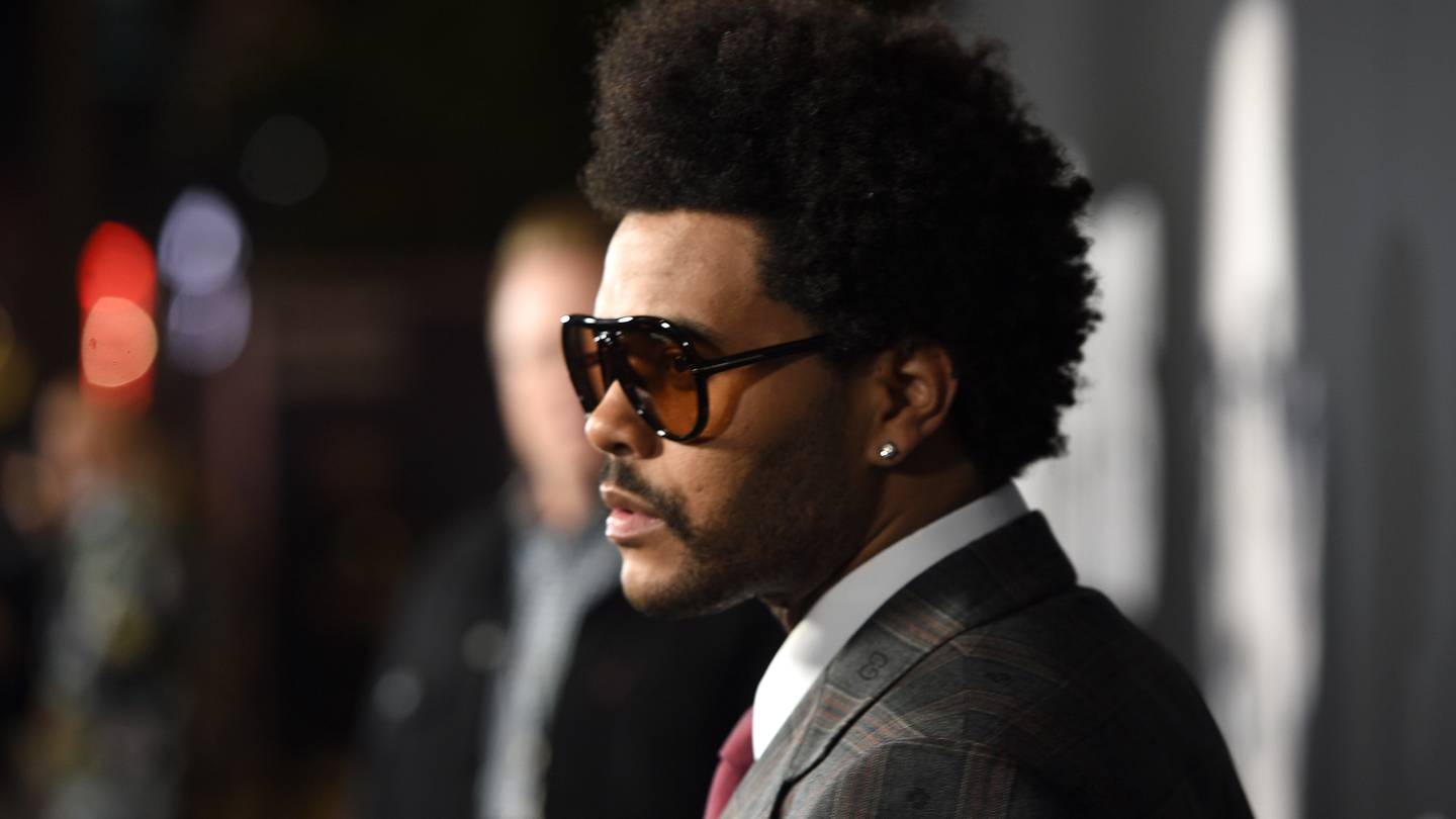 The Weeknd reveals the truth behind recent photos of his broken nose and  busted lip – KISS 104.1 FM
